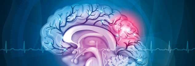 Qual der Wahl: Wer oder was trifft im Gehirn Entscheidungen? Und wie geschieht das? (Foto: guniita/123RF)